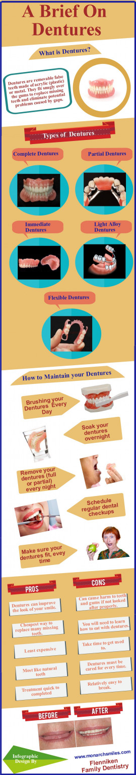 A Brief On Dentures Infographic