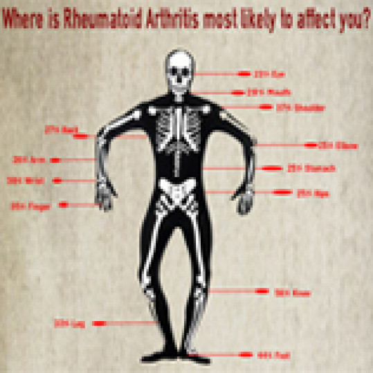 Rheumatoid Arthritis: Treatment, Symptoms and Diet