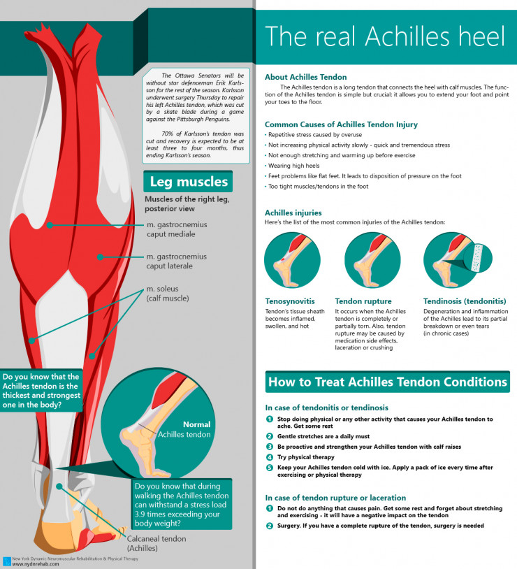Achilles Tendon and treatment of Achilles Tendon rupture