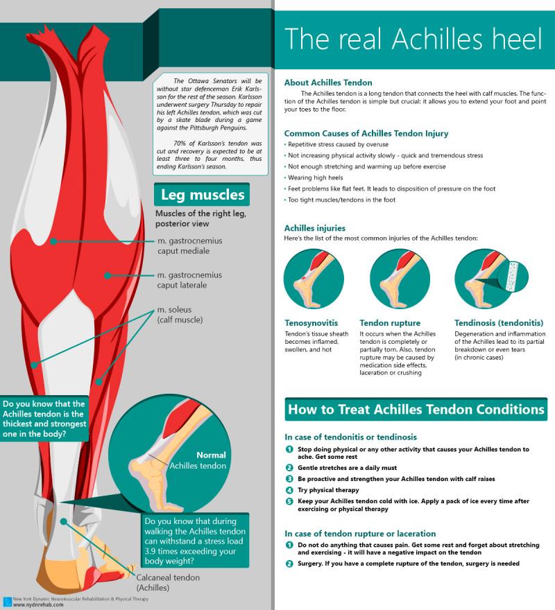 Achilles Tendon and treatment of Achilles Tendon rupture