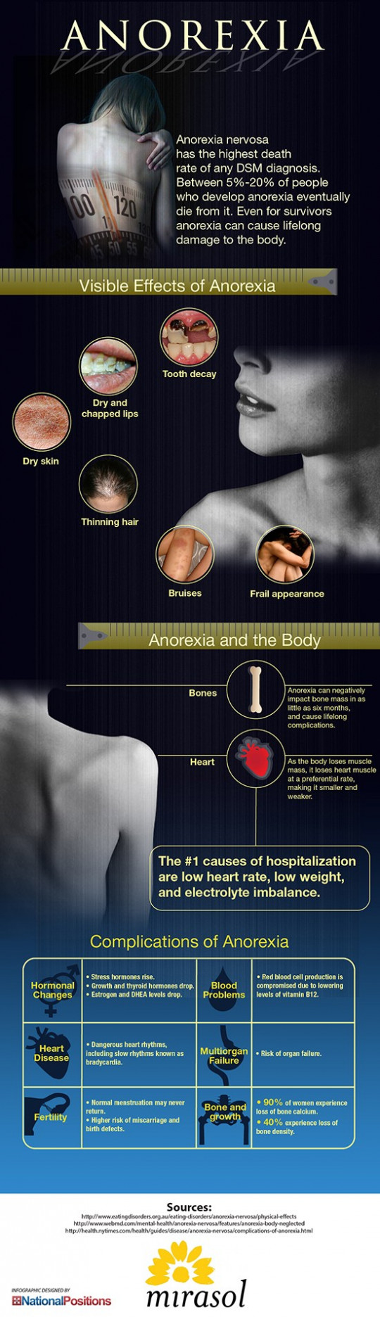 Symptoms of Anorexia and Anorexic People