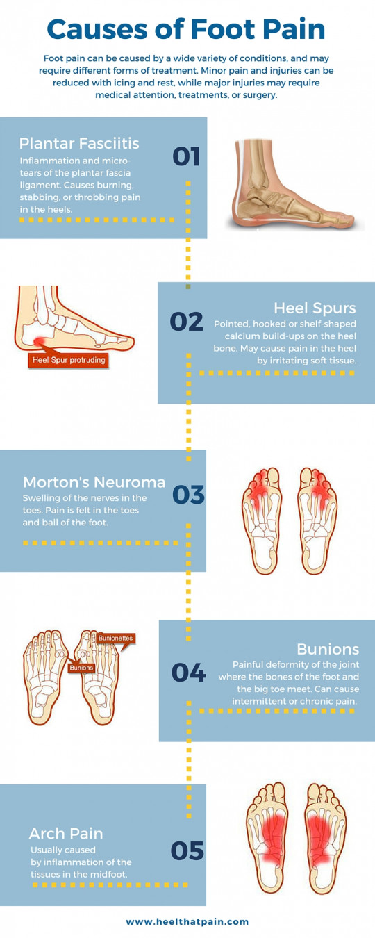 Types of Foot and Heel Pain