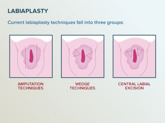 Labiaplasty Techniques Infographic