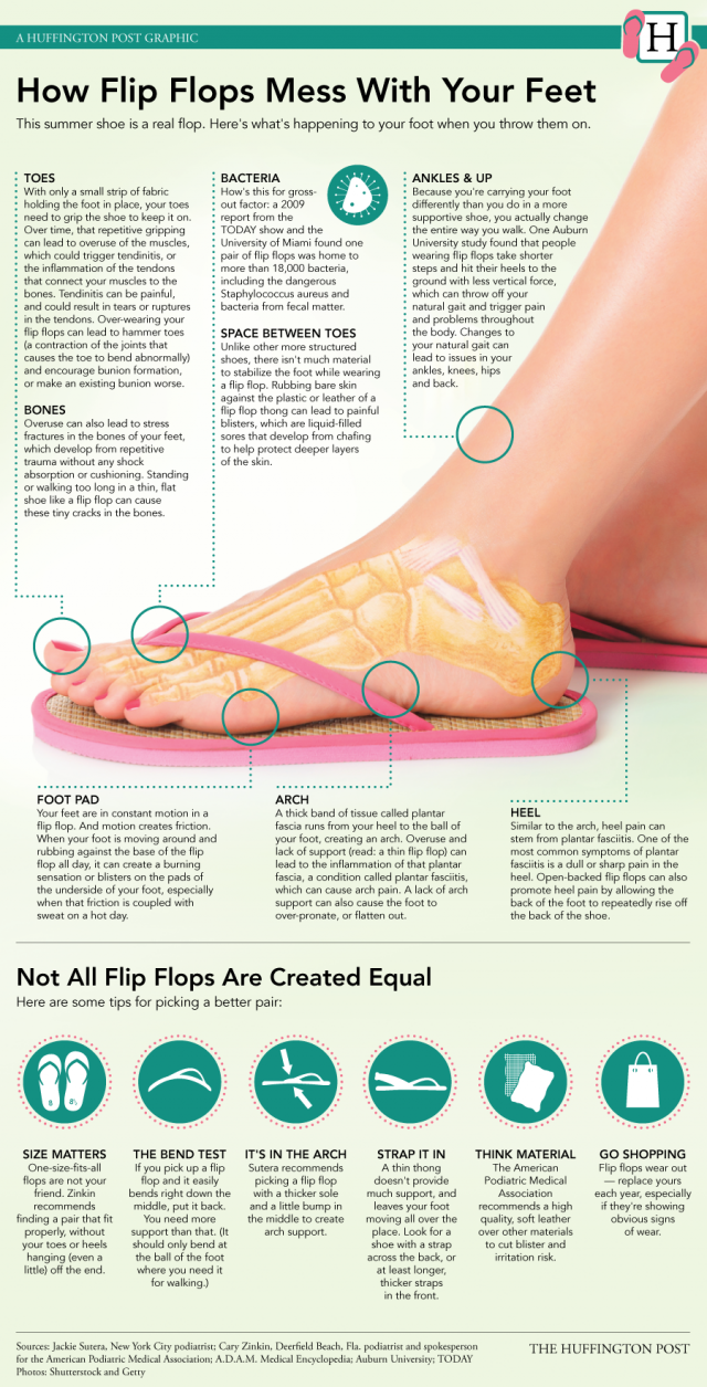 How Flip Flops Mess With Your Feet